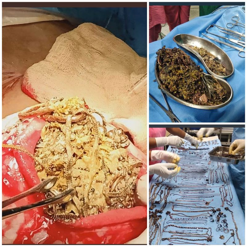 Patient with stomach full of gold Jewelry This mentally ill patient had eaten almost  total were valued at about RM270,000 and weighed 1.6kg of gold jewelries and few other coins!!