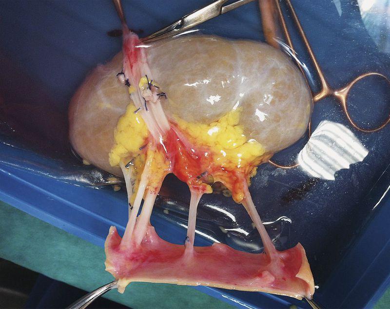 Multiple Renal Arteries!