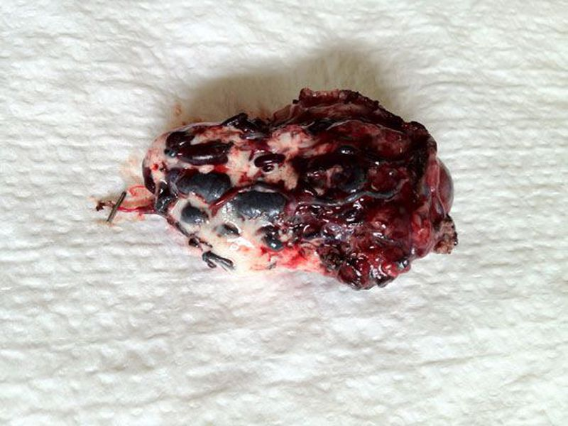 SURGICALLY REMOVED CEREBRAL AVM