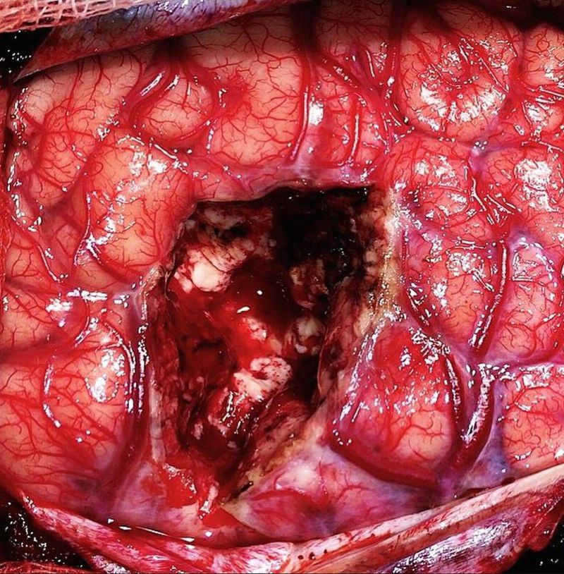 Photo following a surgical drainage of a brain abscess.