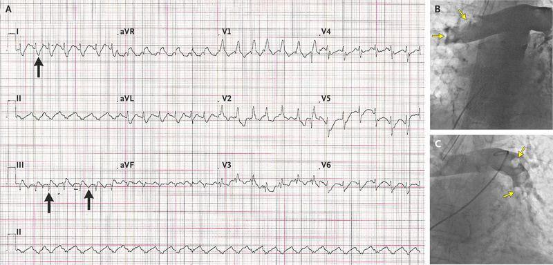 Percutaneous Rotational Pulmonary Thrombectomy