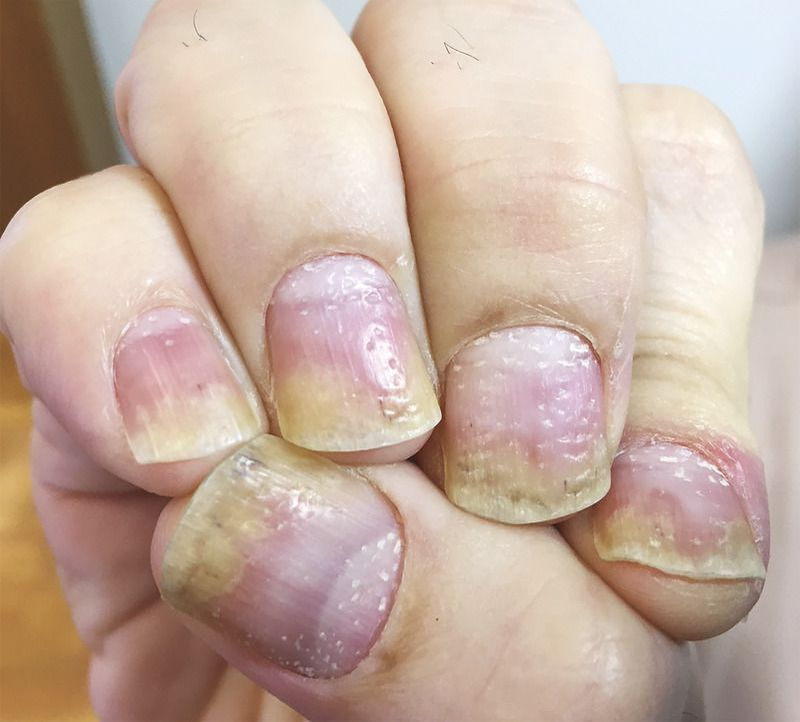 Nail Pitting in Psoriasis