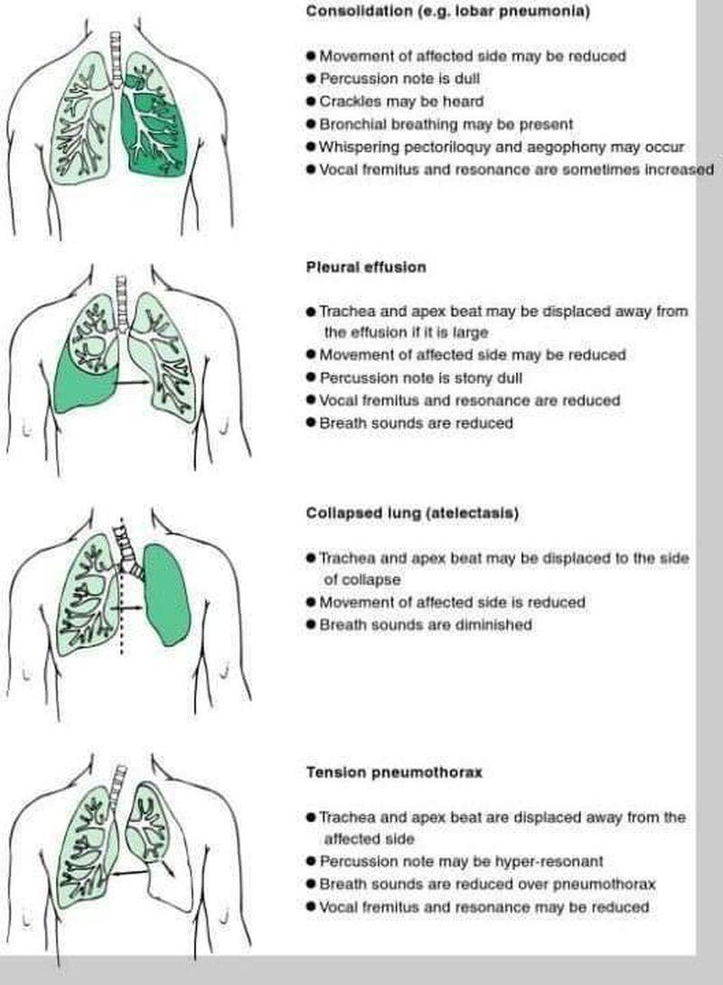 Physiology respiratory.