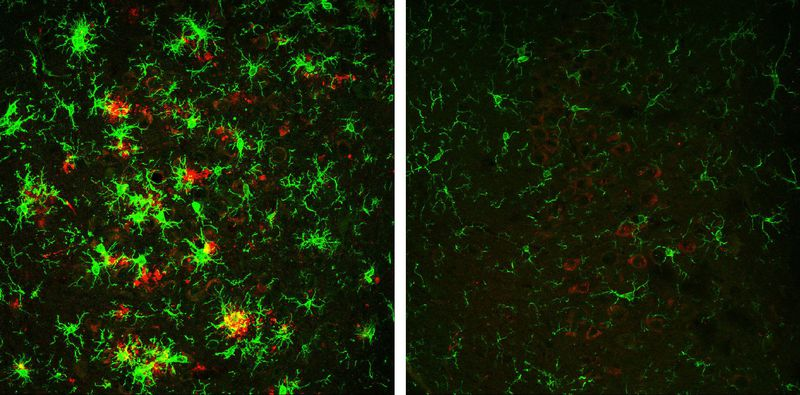 Researchers successfully reverse Alzheimer's disease in mouse model