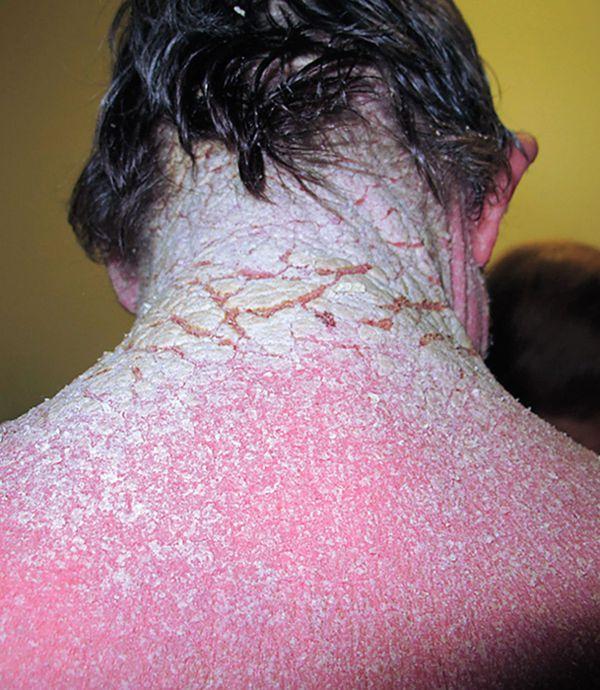 Bartonella Rash Itchy