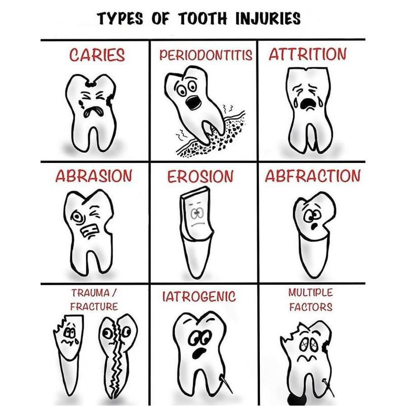 Type of tooth injuries
