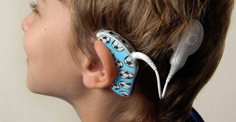 Cochlear Implants: The Structure and the Working