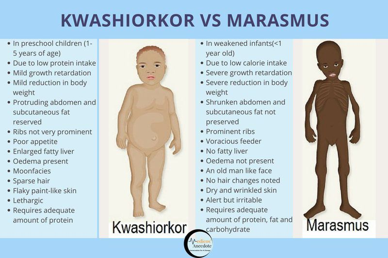Disorders of the Malnourished World- Kwashiorkor vs Marasmus