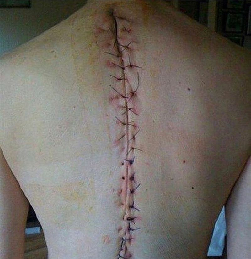 Suturing after scoliosis surgery