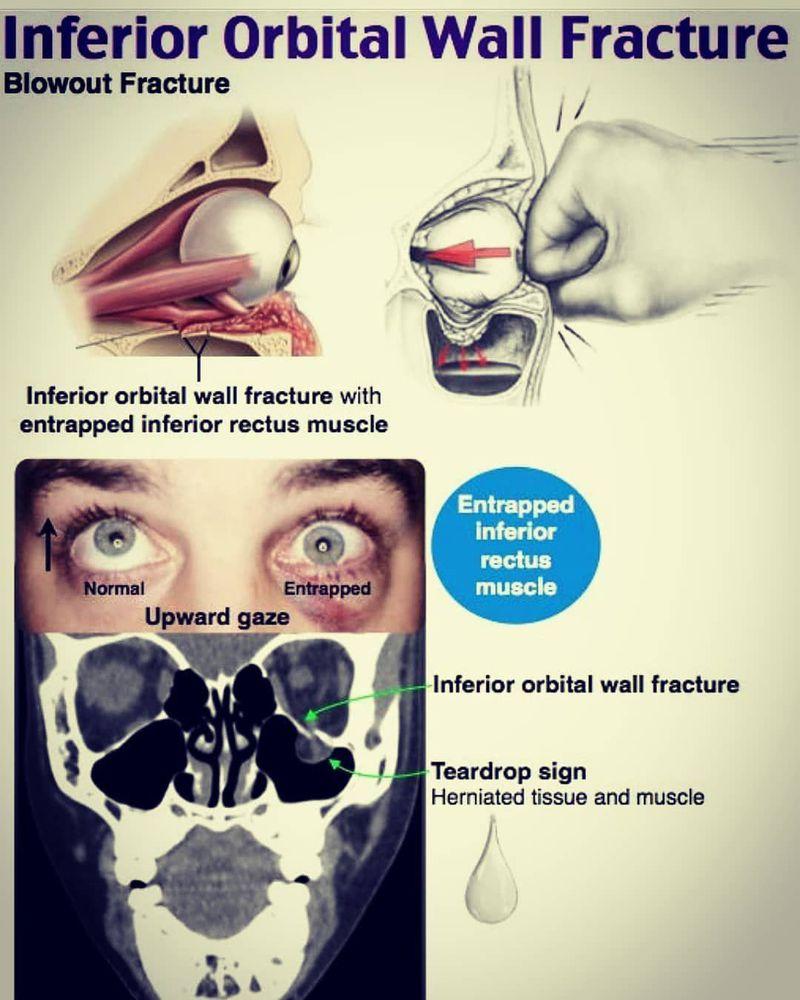 Inferior orbital wall fracture