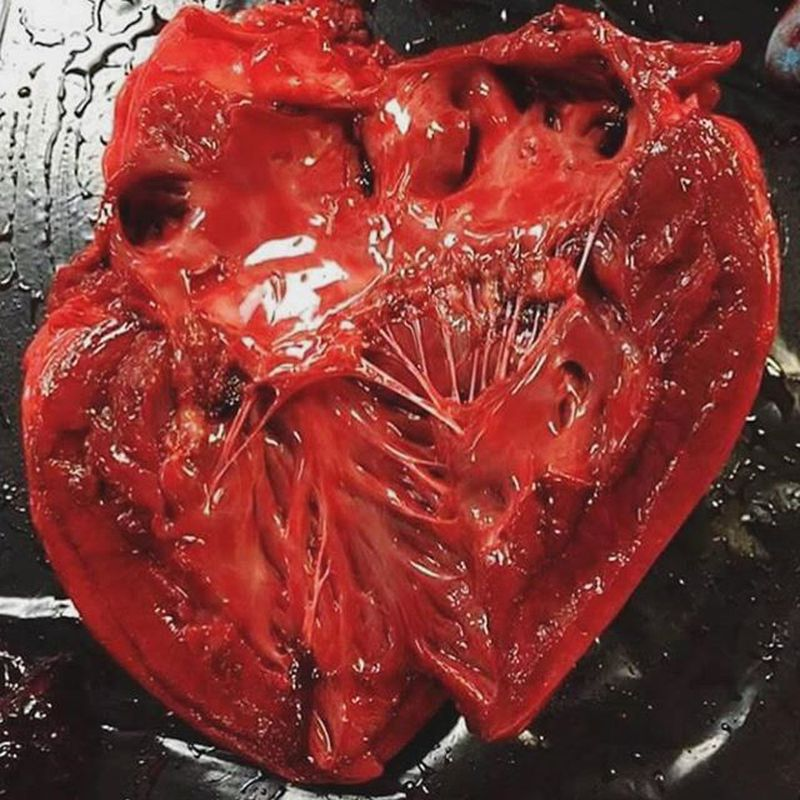 The heart from the inside