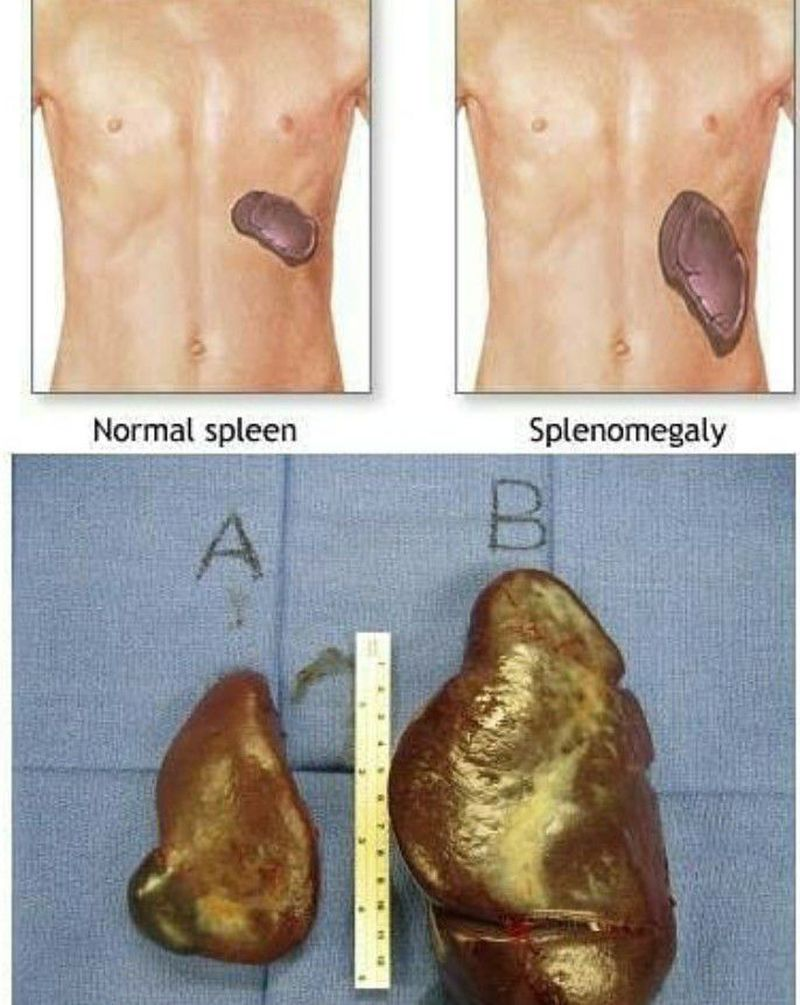 Name any good cause of splenomegaly u know
