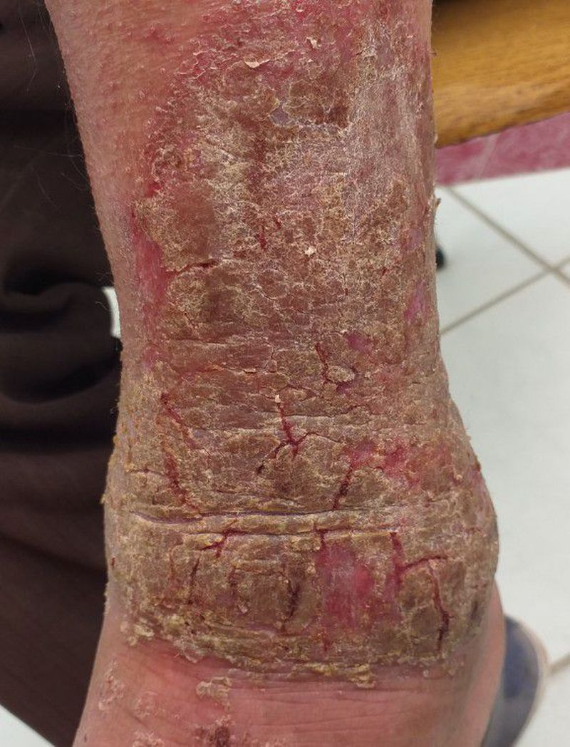 what is your diagnosis? what is the treatment?