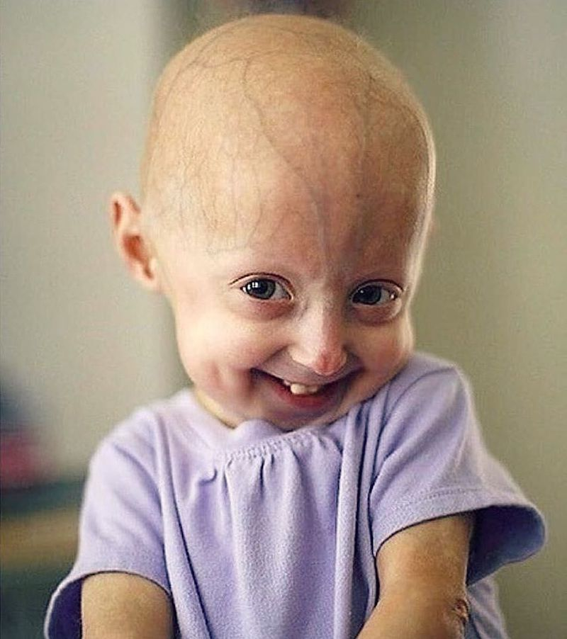 Hutchinson gilford progeria syndrome ✊🏻.                 HGPS is a rare, fatal, genetic condition of childhood with striking features resembling premature aging. Children with progeria usually have a normal appearance in early infancy. At approximately nine to 24 months of age, affected children begin to experience profound growth delays, resulting in short stature and low weight. They also develop a distinctive facial appearance characterized by a disproportionately small face in comparison to the head; an underdeveloped jaw (micrognathia); malformation and crowding of the teeth; abnormally prominent eyes; a small nose; prominent eyes and a subtle blueness around the mouth. In addition, by the second year of life, the scalp hair, eyebrows, and eyelashes are lost (alopecia), and the scalp hair may be replaced by small, downy, white or blond hairs. source; medical _knowledge0