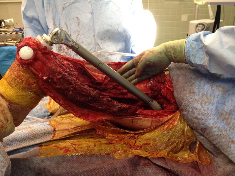 Total femur replacement surgery due to a chondrosarcoma - a metastatic bone cancer!