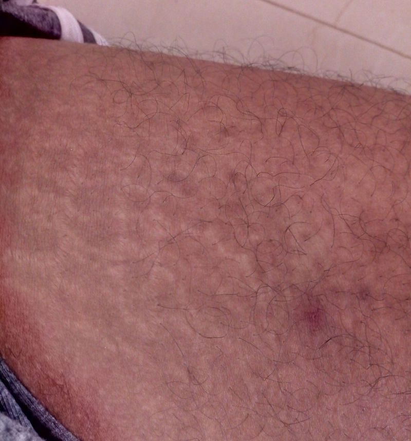 White random lines what symptoms this line ? Any birth mark or any disease