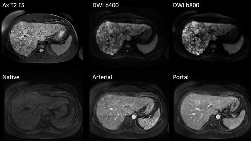 MR Imaging of the liver in a patient with moderate ability of breath-holding