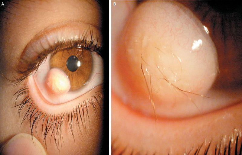 The Hairy Eyeball — Limbal Dermoid