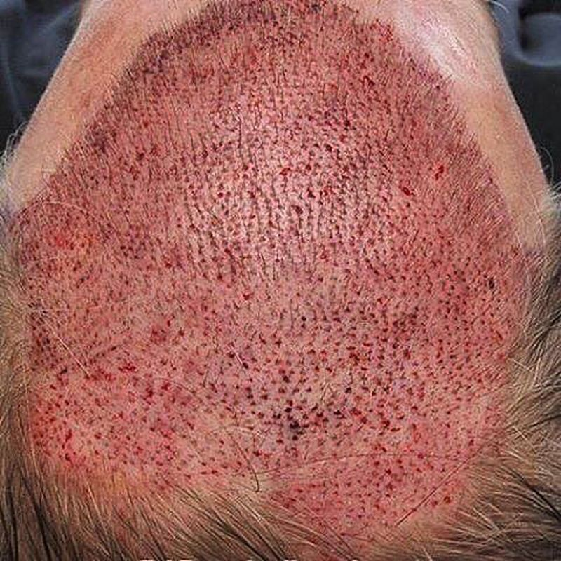Photo of after About two Weeks of a Hair-Transplant