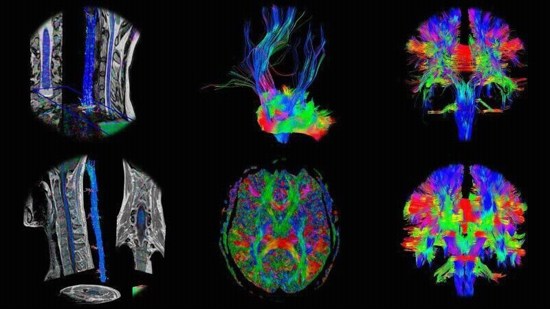 Diffusion Tensor Imaging (DTI) acquired from different Siemens scanners!