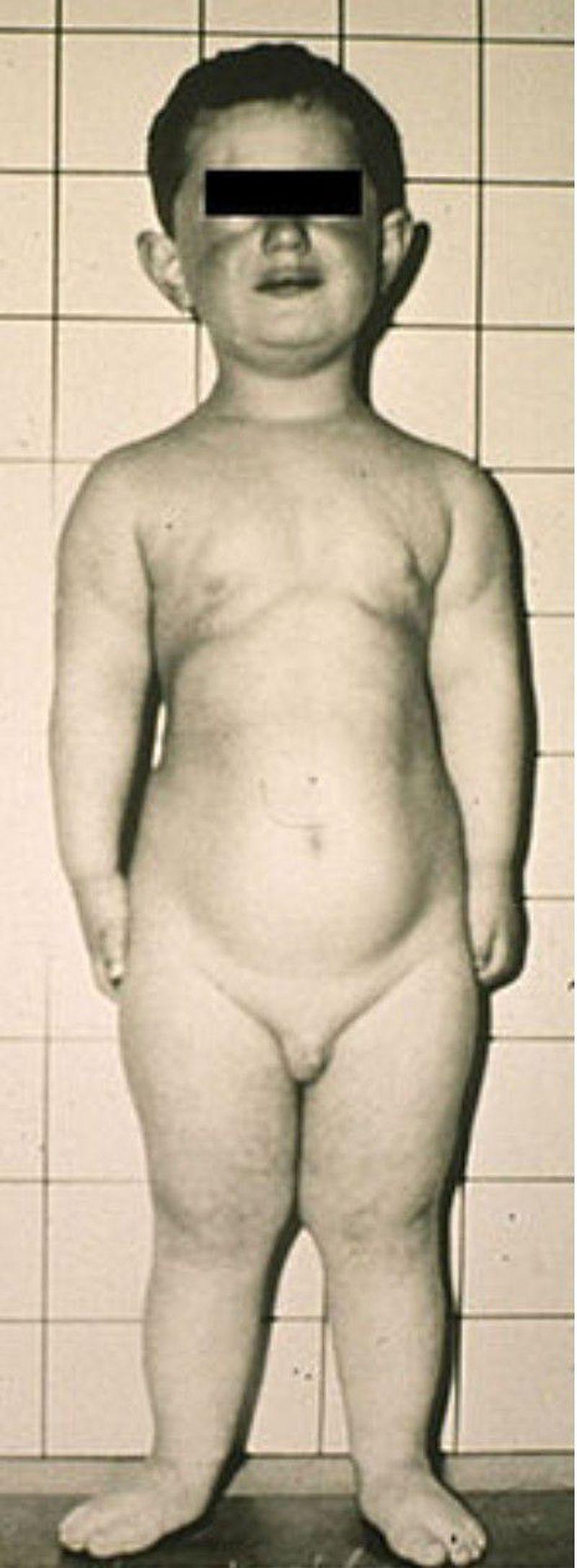 Ellis van creveld syndrome aka chondroectodermal dysplasia