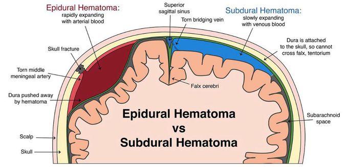 Subdural hematoma vs epidural hematoma
