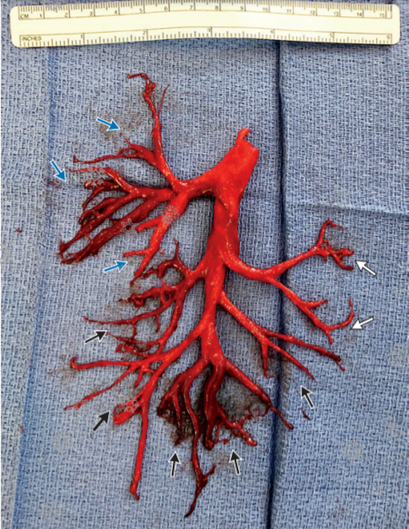 Cast of Right Bronchial Tree Expectorated by a Patient