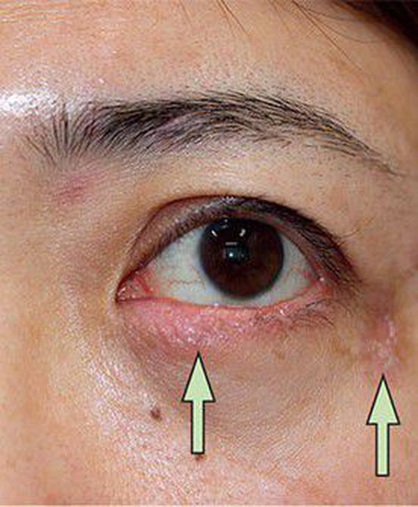 plica semilunaris swollen eye allergies - 600×728