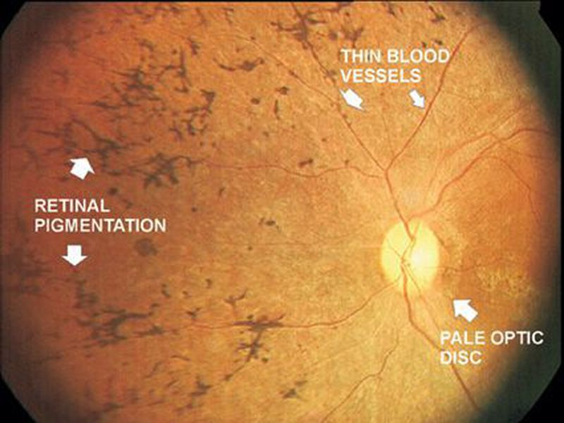 Retinitis Pigmentosa- Fundoscopy findings