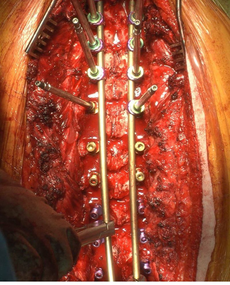 Intraoperative view of scoliosis surgery