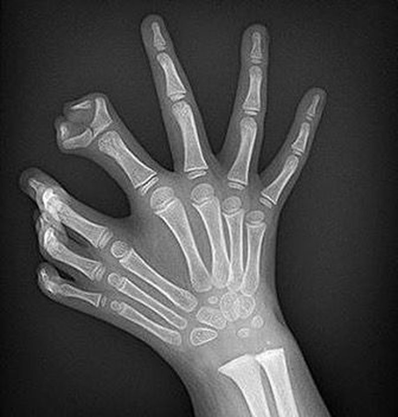 Polydactyly or Polydactylism