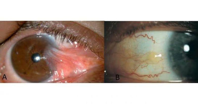 UV rays don't spare the eye- Pterygium vs Pinguecula