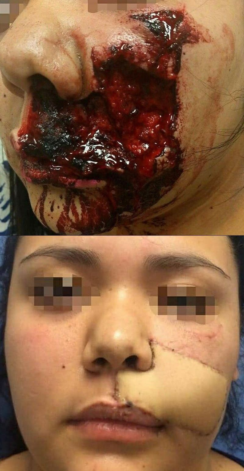 Dog attack again: This woman was attacked by a dog and suffered a bite in the facial area. As usual, when the repair was done with a free flap, the patient's forearm was used for the transplant.