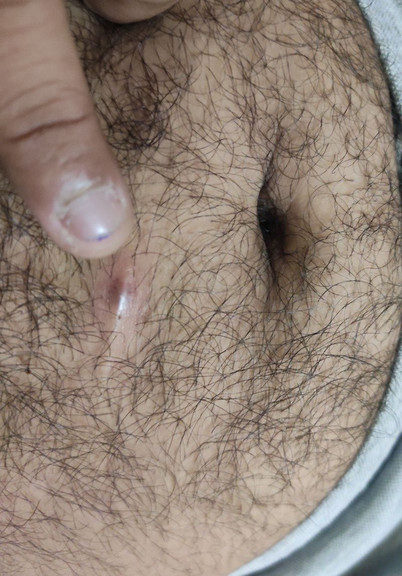 What is this swelling tumour like growth seen on my belly near naval region.it is slightly pain..filled with pus and bad blood.. can anyone tell about this..?🙏🙏