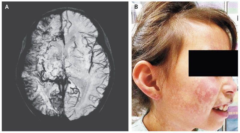 Sturge–Weber Syndrome