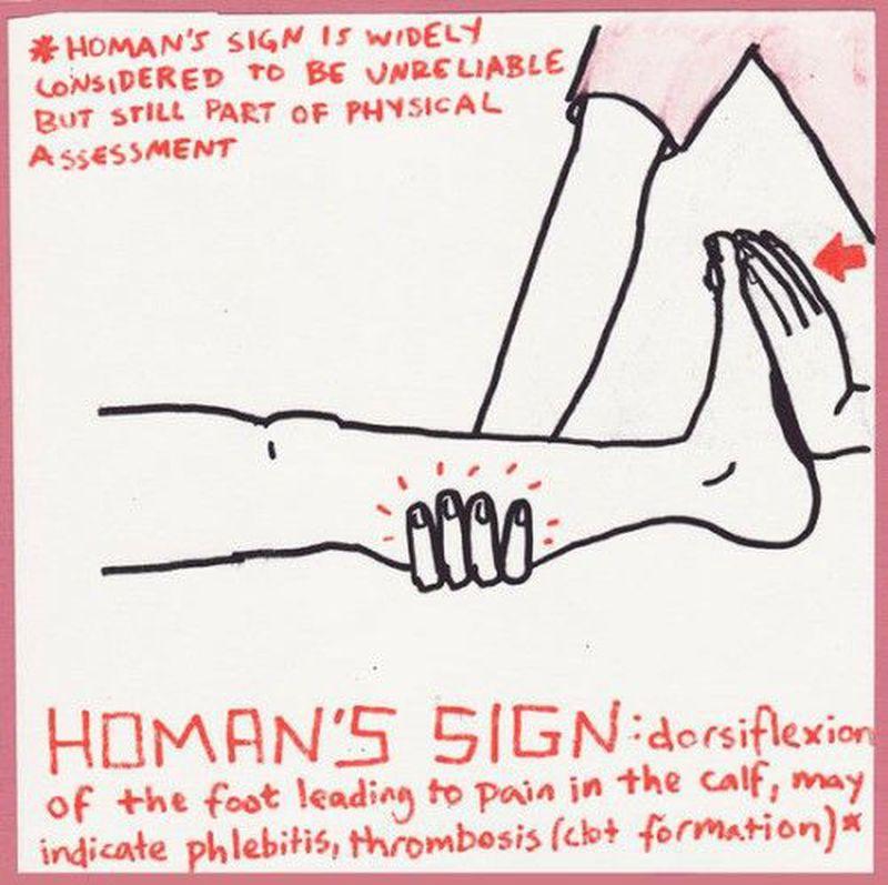 Homan's sign