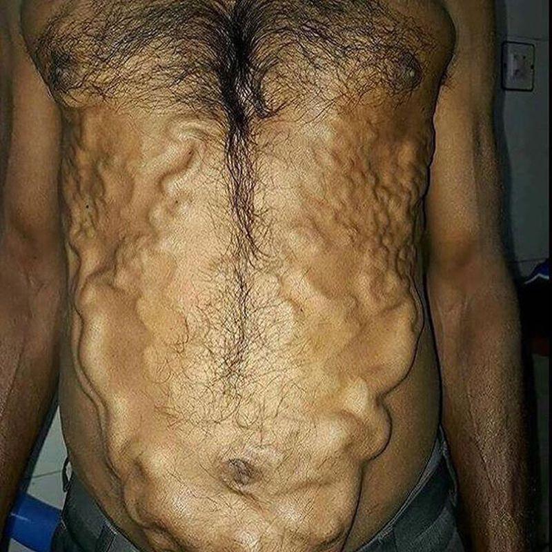Caput medusae - engorged veins throughout his abdomen!