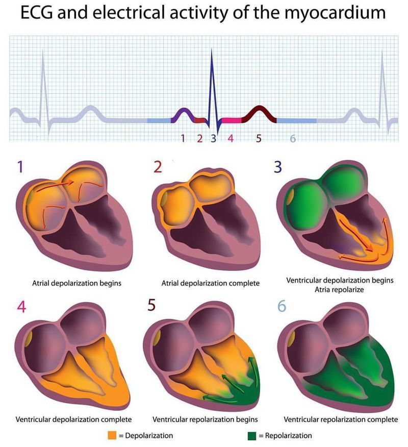 Understand the different waves generated by the ECG