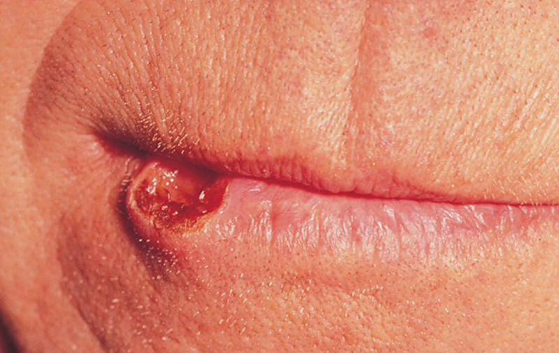 Lip cancer