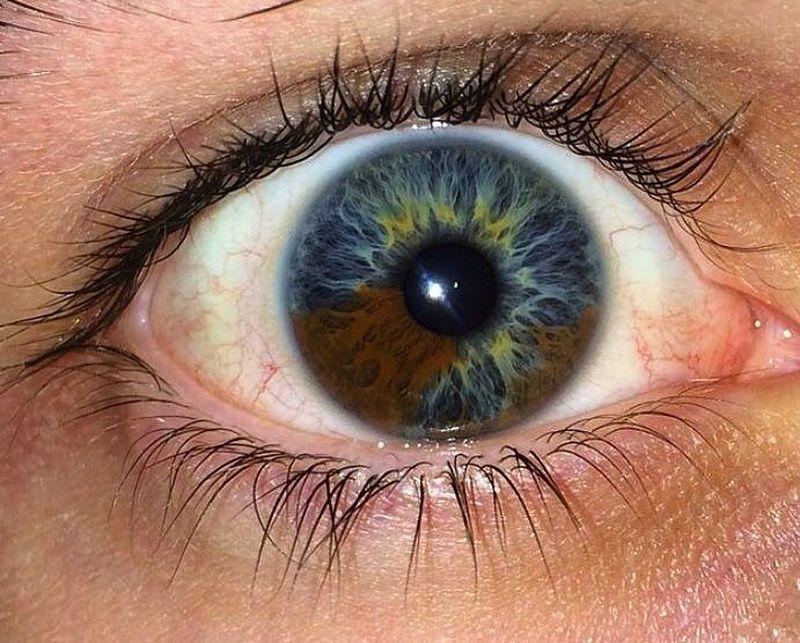 Sectoral heterochromia :)