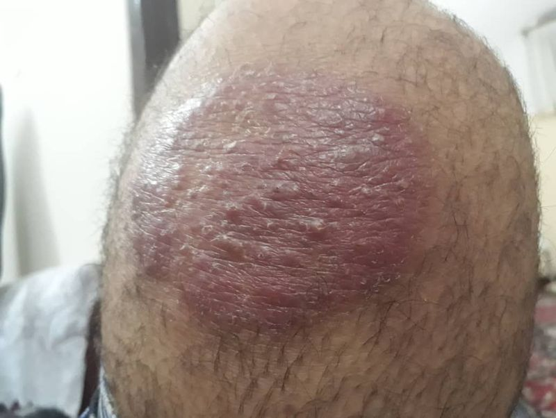 Erythematous skin