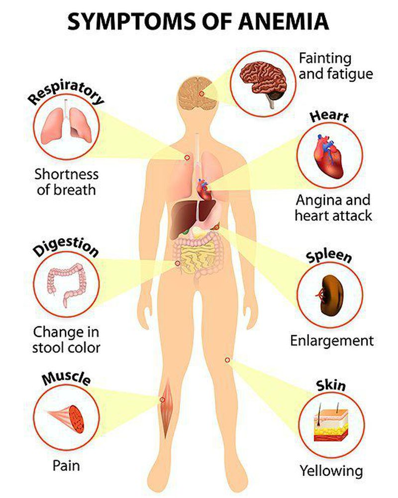 Major symptoms of anemia