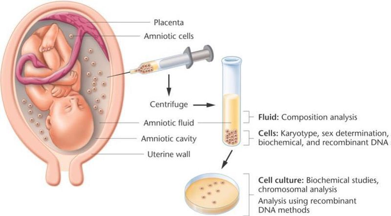 Shown here is a procedure called amniocentesis
