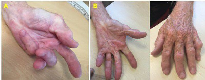 Dupuytren's Contracture: The Permanently Flexed Fingers, and How to Manage Them