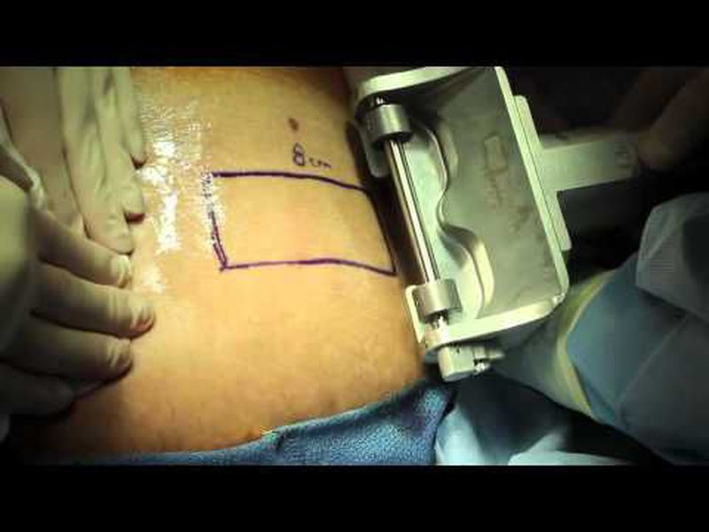 Live Surgery Split Thickness Skin Graft