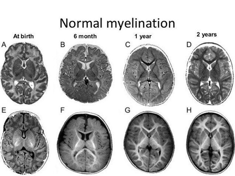 Normal myelination