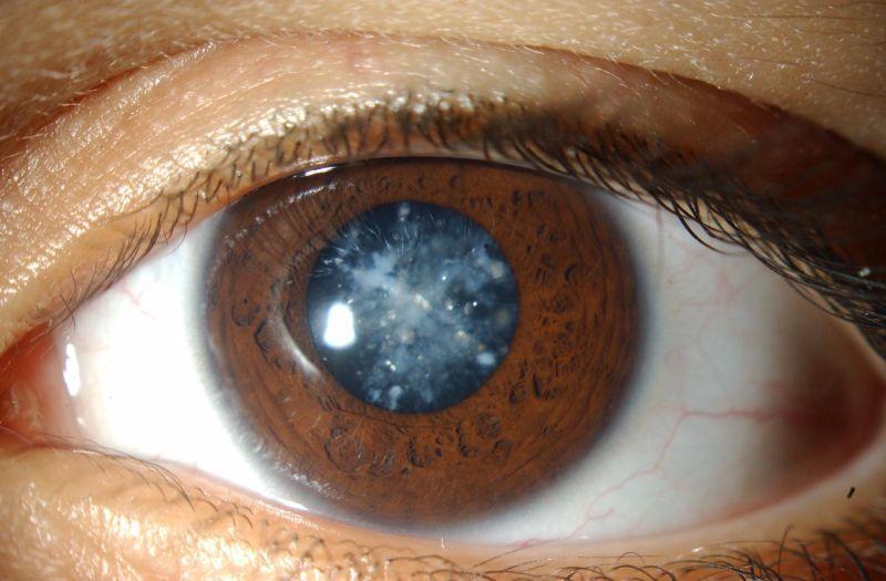 Cerulean/ Blue-dot Cataract