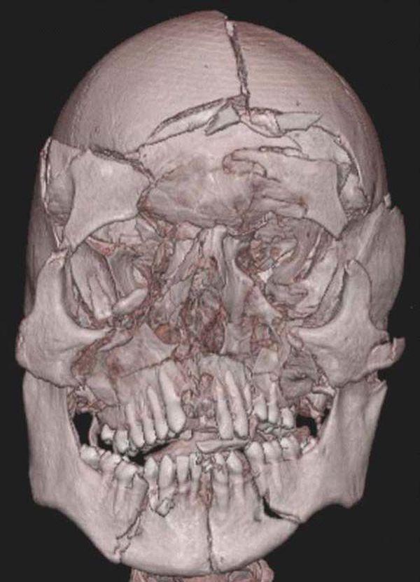 bone-facial-fracture-petite-pups-end-edition