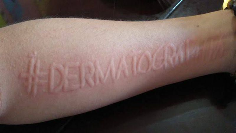 Writing on the Skin- Dermatographism!