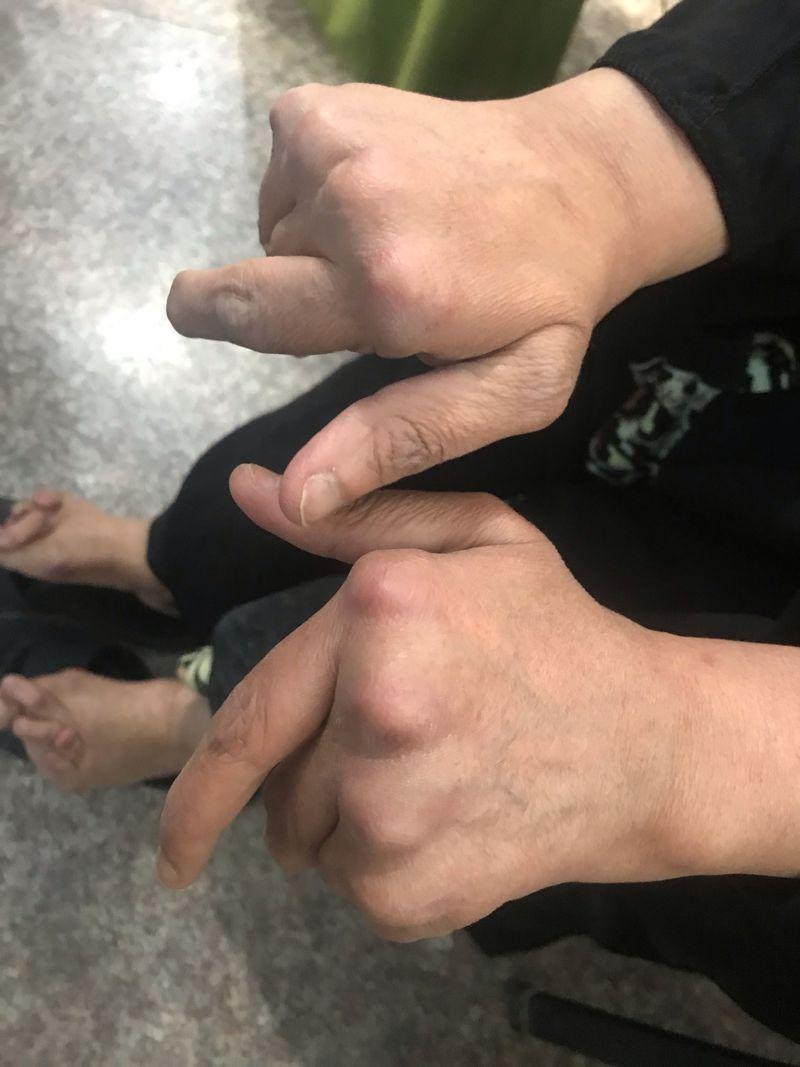 Rheumatoid arthritis for 20 years!